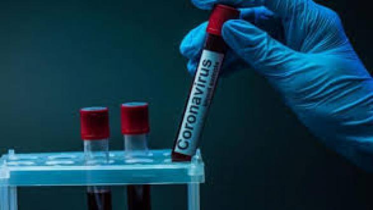 Восемь случаев заражения коронавирусом зафиксировано в Севастополе