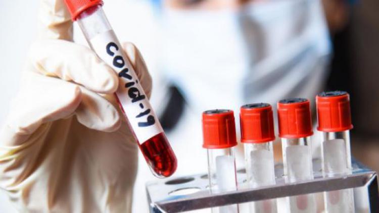В Севастополе умер мужчина с коронавирусом, выявлены еще шестеро зараженных