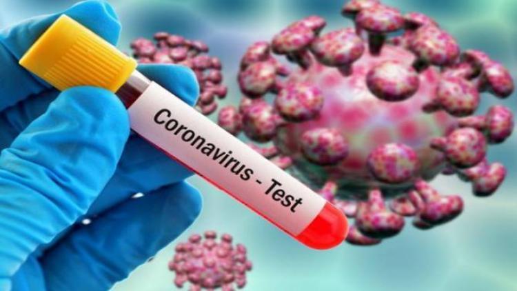 В Севастополе умерла женщина с коронавирусом, выявлены еще 35 зараженных